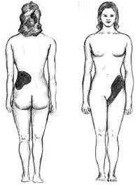 Kidney Stones Causes, symptoms, hazards