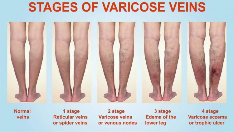 Why my nerves are greenish and swollen on legs ? (Varicose veins: Causes, treatment, diagnosis, and prevention)